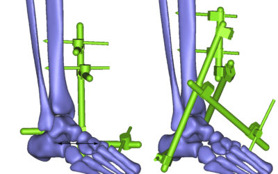 The Important of External Fixator Choices in Treating Bone Fracture
